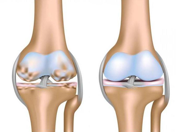 gydymas artrozės 2 3 laipsnių