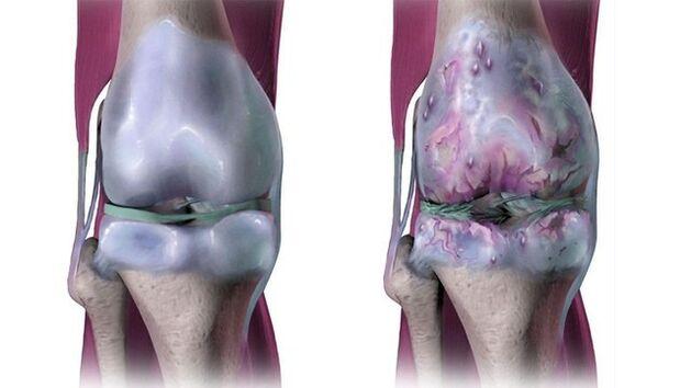 tipai artrozės sąnarių