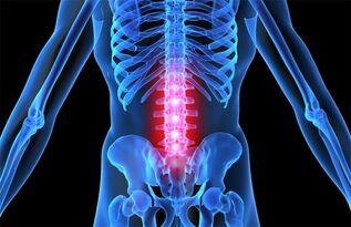 gydymas bendrą sąnarių osteochondrozė rankų nutirpęs ir gerklės sąnarių