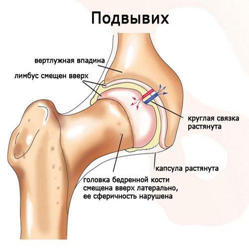 artrozė iš riešo sąnario