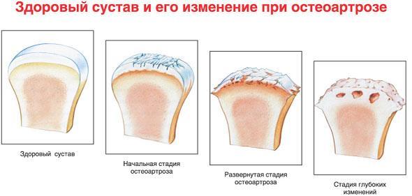 gydymas artrozė 3-iojo laipsnio