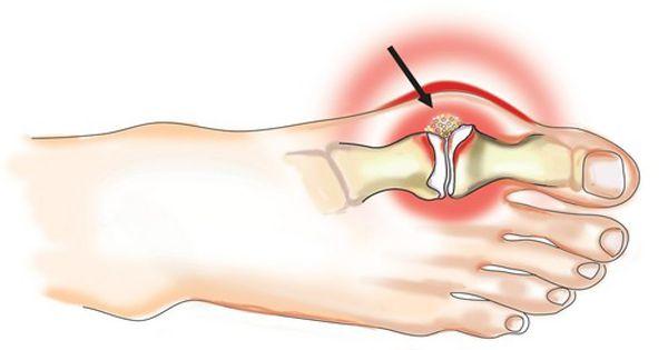 skausmo sąnarių kur kreiptis mustang bendra kremas