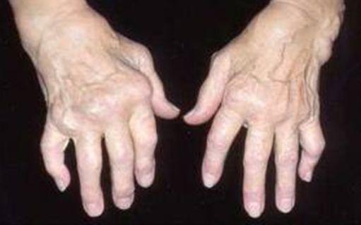reumatoidinis artritas iš rankų sąnarių tipas bendros 2a netraktuoja