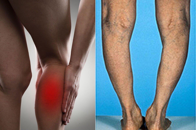 degeneracinė liga pėdos sąnarių