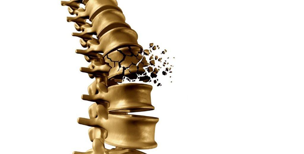 pašildyti osteochondrozė osteochondrozė