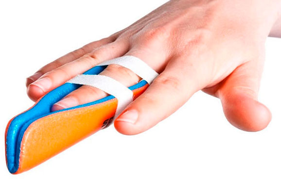 sąnarių uždegimą ant iš liaudies gynimo rankų pirštais jei sunkus skausmas peties sąnario