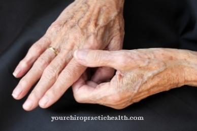 kaip tepalas įsiskverbia sąnariai sunkus skausmas traumos