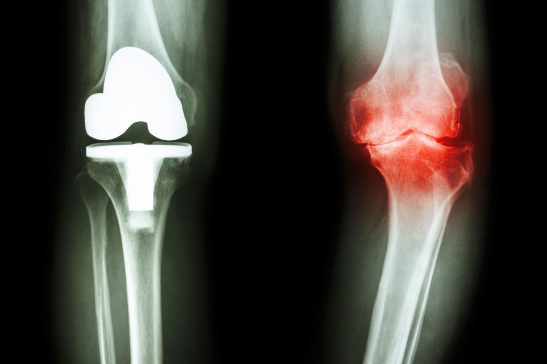 bendra yra ištrinant šį artritas