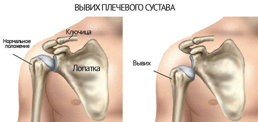 gydymo osteoartritas liaudies gynimo problema su peties sąnario