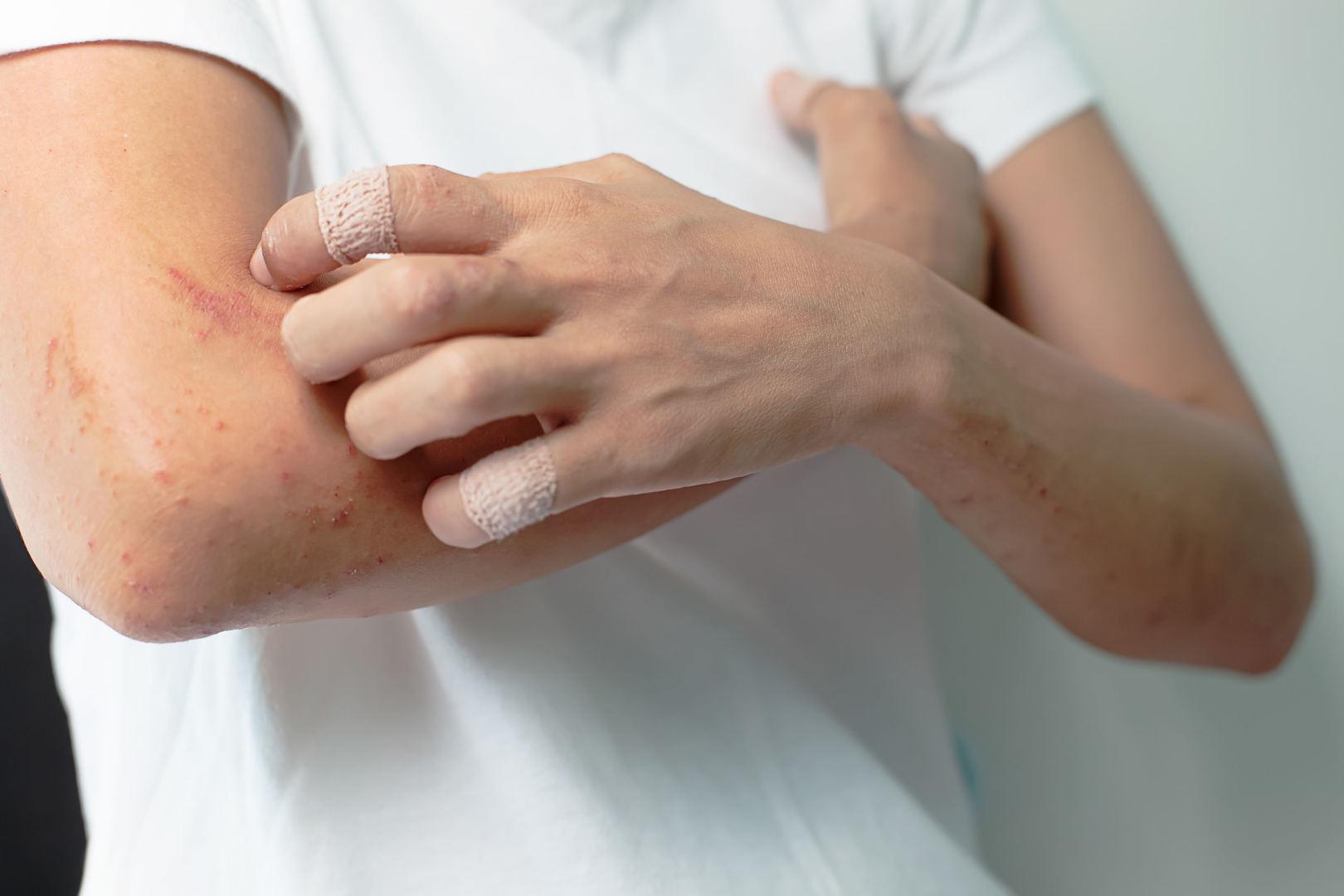 osteochondrozė tepalai neturi įtakos skrandžio