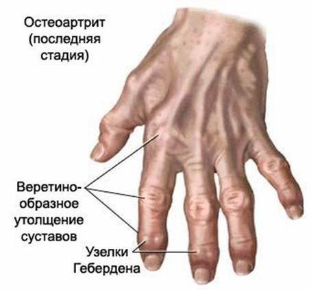 priemonės skausmas rankose sąnarių jei artrozė visų sąnarių