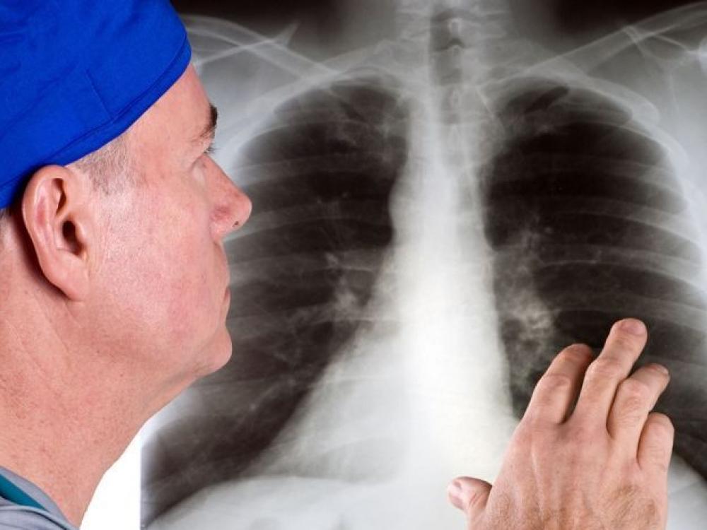 su plaučių fibroze sąnarių sustingimas