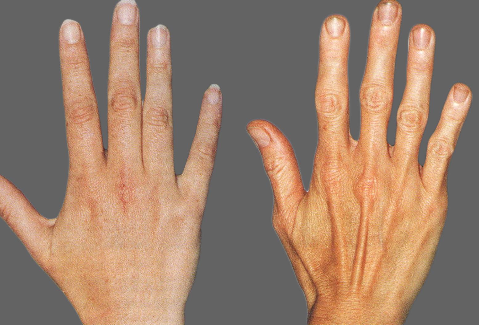 artritas ant pirštų sąnarių liaudies gynimo parengti bendrą