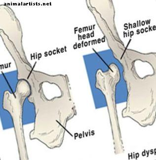 kojos didelio pirsto skausmas