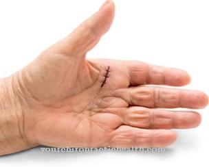 pašalinti pirštų finger uždegimas laikykite pečių sąnarius