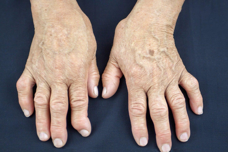 sąnarių gydymas bendrą artrito artrito įtrūkimai tiesiosios žarnos ir sąnarių skausmas