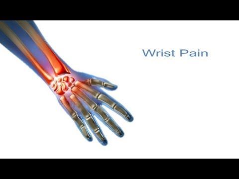 priežastys nykščio skausmo tepalas su artritu alkūnės sąnario
