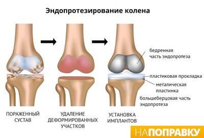medicina iš sąnarių artrozė ligų