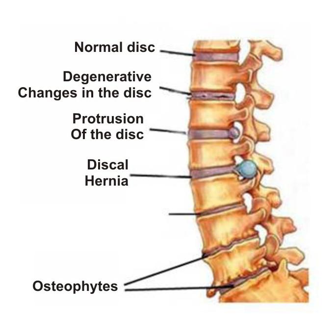 kremai nuo kaklo osteochondroze skauda nugara gulint ant nugaros