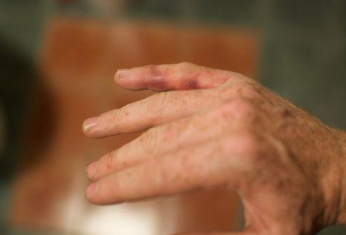 paraudimas ir skausmas piršto jungtyje