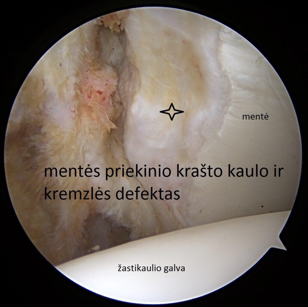 po stomatologas skauda sąnarį