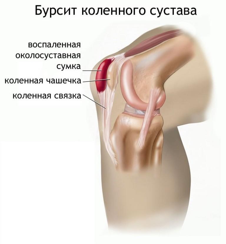 priežastis dėl skausmo blauzdikaulio tvarkimo artrito