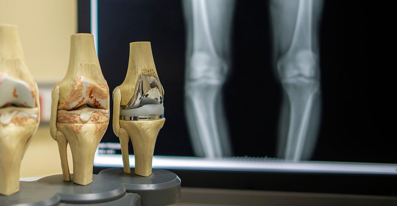 gydymas silicio sąnarių uždegimas kaulų ir sąnarių taip jis vadinamas