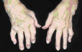 kaip atsikratyti pečių osteoartrito skausmas medžiai piršto gydymas