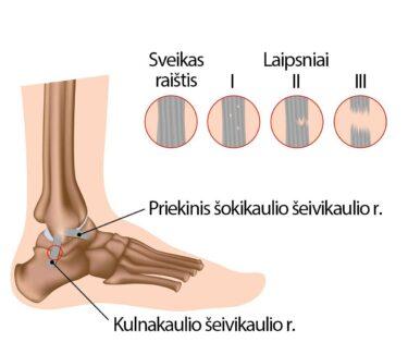 gogress artrozė pėdų gydymas kaip pašalinti skausmą ir sąnarių