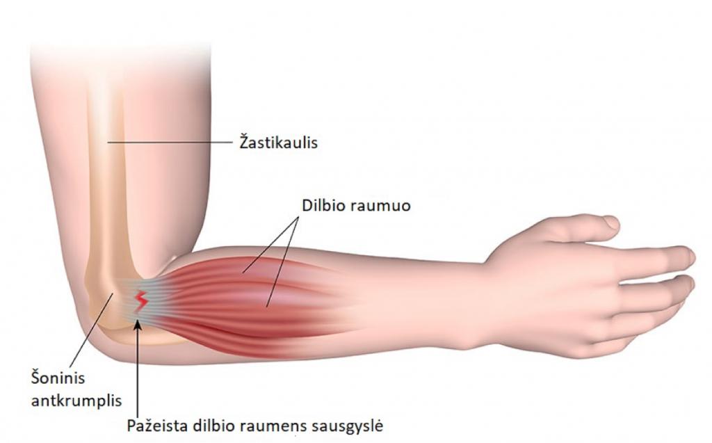 artrozė iš pleceva sąnarių