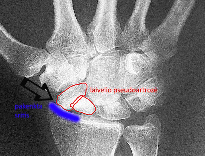 artrozė sąnarių kam susisiekti gerklės sąnarių ant rankų ir krūtinės