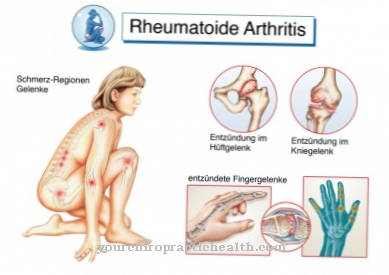 ligos sąnarių senyviems vyrams gydymo raumenų ir sąnarių skausmas
