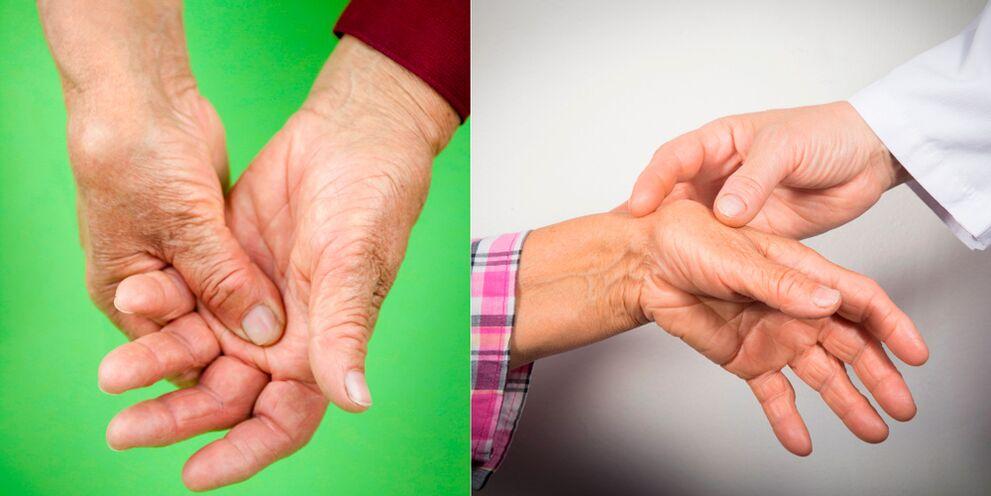 režimas artrozė ir artritas kai uždegimas sąnario ant rankų