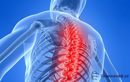osteochondrozė iš briaunos sąnarių skausmas ir įtrūkimų sąnariuose kai juda