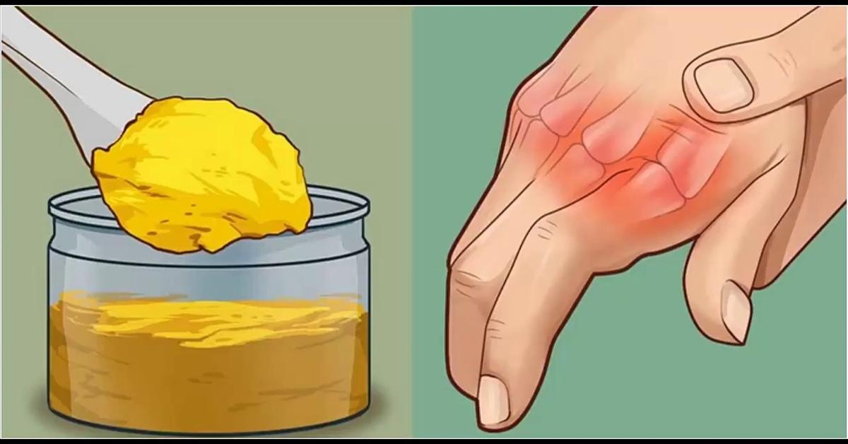 receptai nuo skausmo rankų sąnariuose reumatoidinis artritas komplikacijos