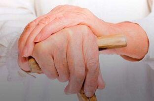 skausmas iš priežasčių nykščiais sąnarių