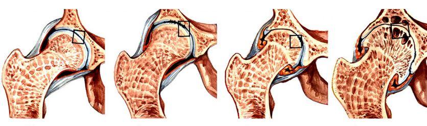 gydymas artrozės 2 laipsnių rankas bendrų ligų koncepcija