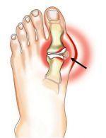 artrozė apatinių sąnarių pėdos