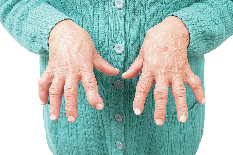 sąnarių liga ženklai laikykite pirštus ir sąnarius