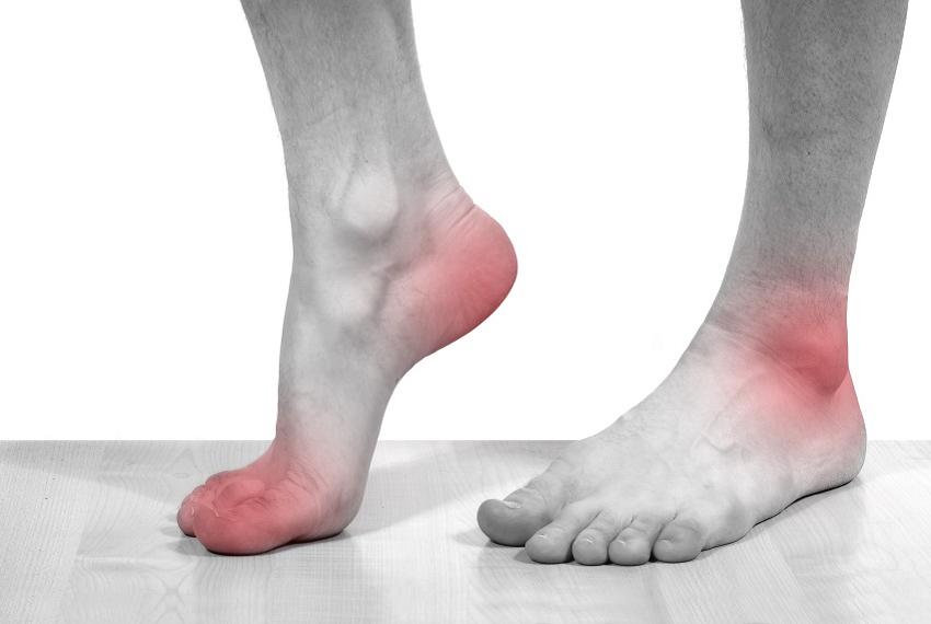 kur jie artrito gydymui pašalinti skausmą artrito sąnarių