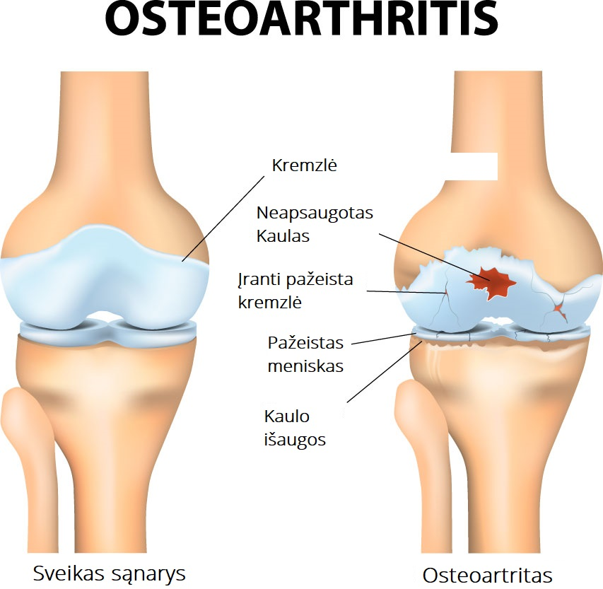 simptomai osteoartrito peties