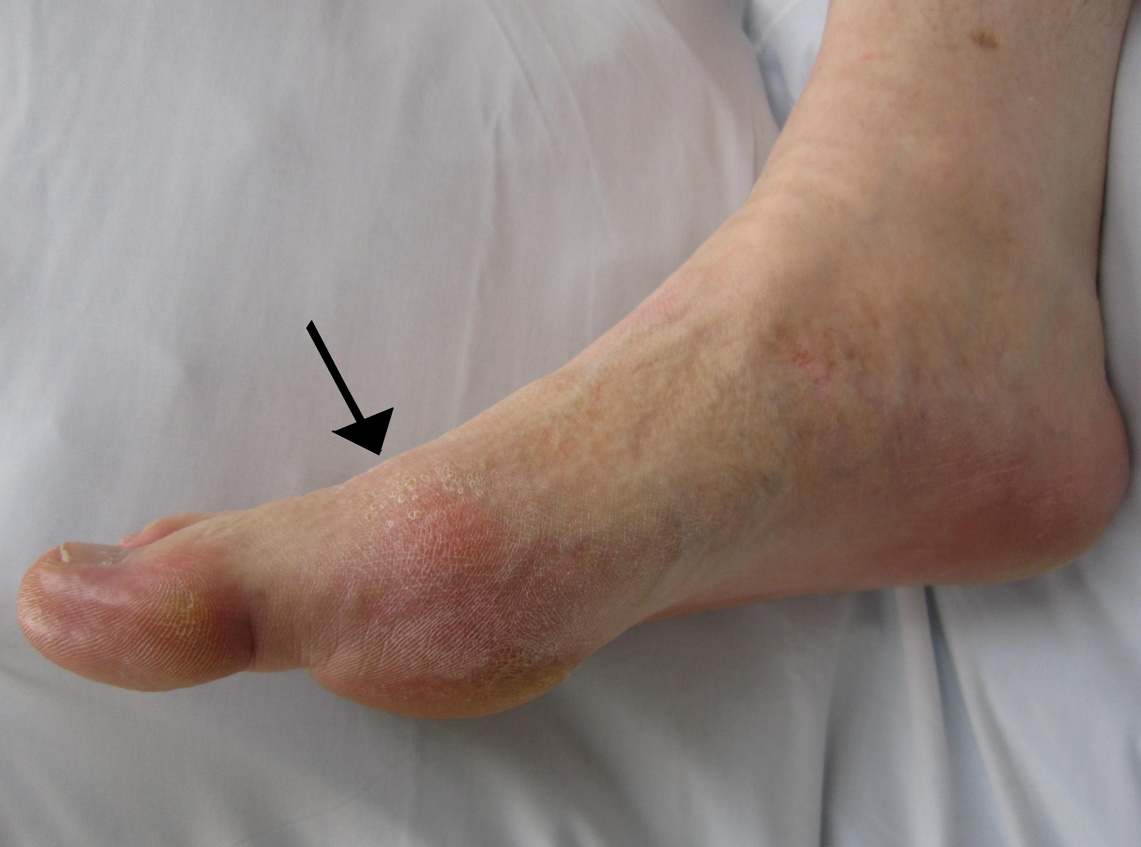 liga iš lotynų sąnarių kodėl skauda ranką alkūnės sąnario