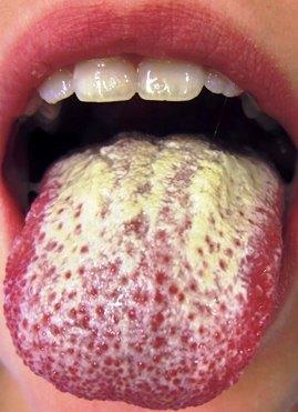 epipudilit sustav gydymas reumatinės sąnarių skausmas nei pašalinti