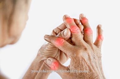 gydymas artritu sąnarių vertus ryte skausmas peties sąnario