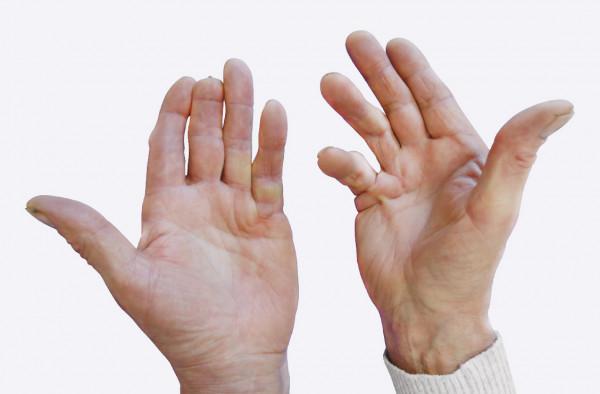 ką daryti jei skauda ranką peties sąnario gliukozaminas chondroitino diabetas