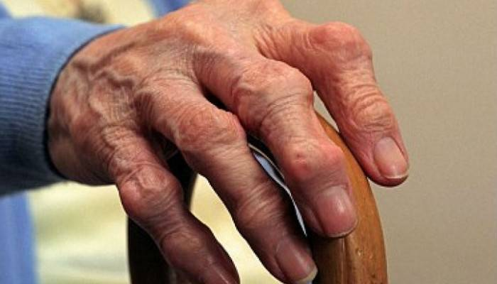nugaros skausmo gydymas namuose liaudies gynimo kas paskutinis kai sąnariai serga