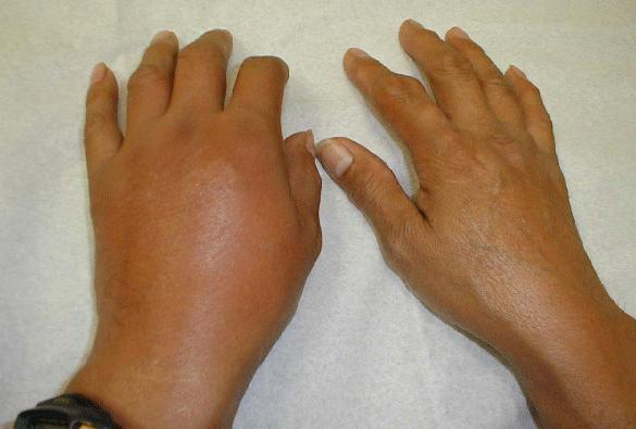 gerklės bendra nykščio ant jo kairės rankos receptas su skausmu tabletës sąnarių