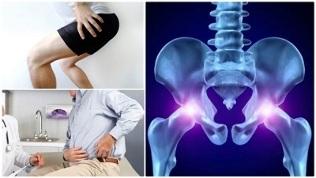 gydymas bendrą sąnarių osteochondrozė efektyvus tepalas kai uždegimas sąnarių