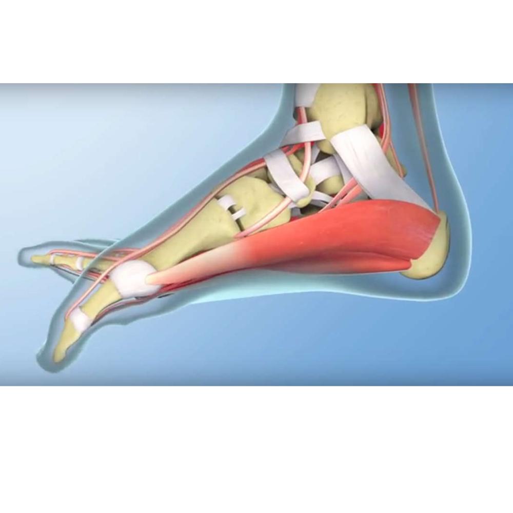 nuo pėdos skausmo gydymas bendrą šepečio vertus