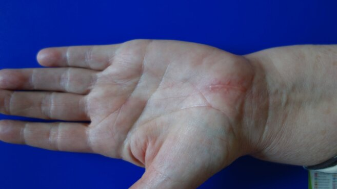 gydymas sąnarių naudojant mbst atsiliepimai į bendros peties skausmas ir gydymo